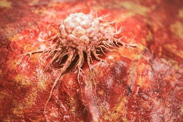 Rak w Unii Europejskiej: w tym roku na nowotwÃłr umrze około 1,5 mln ludzi [Fot. crevis - Fotolia.com]