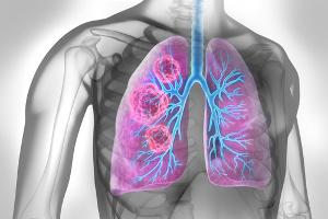 Rehabilitacja oddechowa szansą dla chorych na IPF [Fot. peterschreiber.media - Fotolia.com]