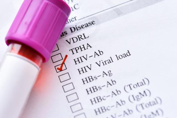 Rekordowa liczba zakażonych wirusem HIV [Fot. jarun011 - Fotolia.com]