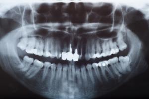Rentgen u dentysty: co warto wiedzieć? [Fot. olmarmar - Fotolia.com]