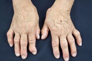 Reumatoidalne Zapalenie Stawów: komunikacja warunkiem skutecznego leczenia [© hriana - Fotolia.com]