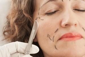 Ryzykowne piękno: odpowiedzialność przy zabiegach medycyny estetycznej [Operacja plastyczna, © solla - Fotolia.com]