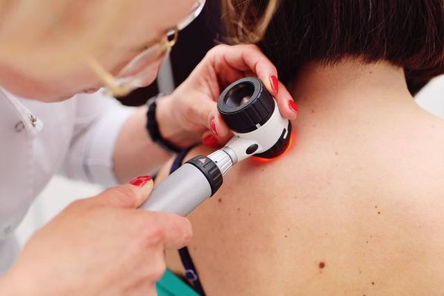 Samodzielna kontrola znamion - przekonaj się, jakie to proste i waÅźne dla Twojego zdrowia [fot. Shutterstock]