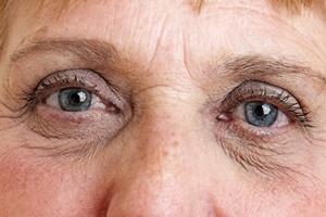 Siedem kroków do zachowania zdrowia oczu [© Vera Kuttelvaserova - Fotolia.com]
