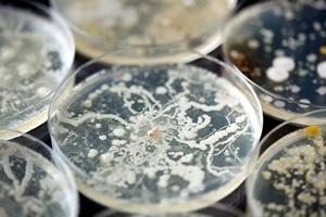 Siła układu odpornościowego zależy od... statusu społecznego [Bakterie, © Leigh Prather - Fotolia.com]