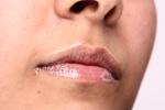 Skóra naczynkowa zagrożona trądzikiem różowatym [© stryjek - Fotolia.com]