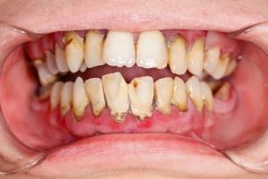 Słabe zęby zapisane w genach? To mit! [Fot. Sandor Kacso - Fotolia.com]