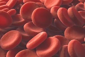 Słabo, blado i niemrawo. Czy to anemia? [© ktsdesign - Fotolia.com]