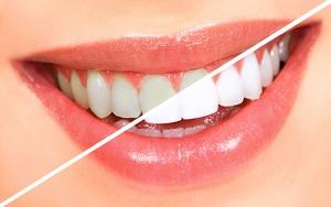 Sposob na biale zeby w kazdym wieku img5068ada5edcba White Express System – skuteczna walka z osadem na zębach!
