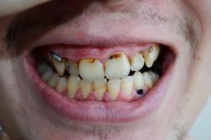 Sposób na sezonowe infekcje? Pomoże dbanie o zęby [Fot. Ilia - Fotolia.com]