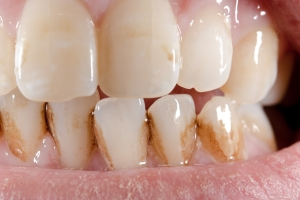 Sposób na śnieżnobiałe zęby. Sprawdź, czego unikać [Fot. Michael Tieck - Fotolia.com]