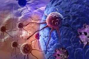 Sześć objawów raka, które ludzie zwykle ignorują [Fot. vitanovski - Fotolia.com]