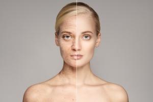 """Telomeraza: """"enzym młodości"""" hamuje starzenie się, ale może zwiększać ryzyko raka [Fot. yuriyzhuravov - Fotolia.com]"""