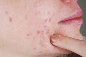Trądzik dorosłych należy leczyć. Jak dbać o skórę? [Trądzik, © gmstockstudio - Fotolia.com]