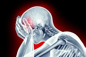 Udar mózgu. Nie radzimy sobie z leczeniem [© the_lightwriter - Fotolia.com, Udar mózgu]