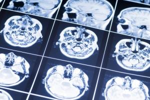 Udar mózgu. Żywienie ważne w rehabilitacji [Fot. Siergiej Łabutin - Fotolia.com]