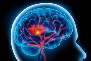 Udar mózgu - fakty i mity [© psdesign1 - Fotolia.com]