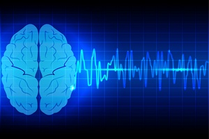 Udary mózgu: coraz poważniejszy problem [© mrspopman - Fotolia.com]