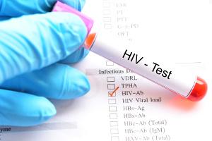 Udział pacjentów w procesie leczenia infekcji HIV [Fot. jarun011 - Fotolia.com]