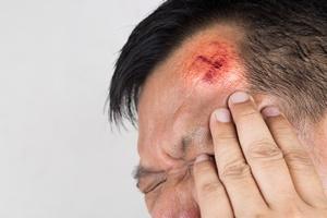 Urazy głowy zwiększają ryzyko choroby Alzheimera i Parkinsona [© olgavolodina - Fotolia.com]