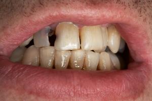 Usta mÃłwią jakich witamin ci brakuje [Fot. terex - Fotolia.com]