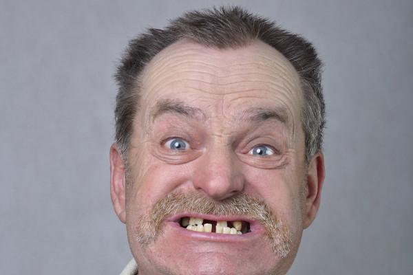 Utrata jednego zęba może mieć poważne konsekwencje [Fot. wagabunda737 - Fotolia.com]