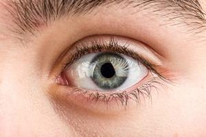Uważaj na UV. Chroń oczy [© artush - Fotolia.com]
