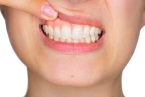 Wakacyjne słońce niezbędne dla zdrowia zębów [Fot. Stefano Garau - Fotolia.com]