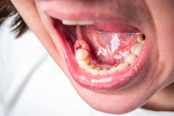 Wiele chorób ma swój początek w jamie ustnej [Fot. Natallia - Fotolia.com]