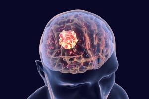 Wielkość mózgu a ryzyko raka [Fot. Kateryna_Kon - Fotolia.com]