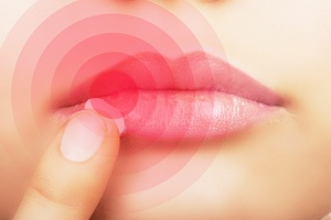 Wirus opryszczki pomocny w leczeniu raka skóry! [© Valentina R. - Fotolia.com]