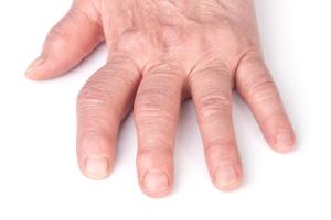 Witamina D powstrzyma rozwój reumatoidalnego zapalenia stawów? [Fot. kolesnikovserg - Fotolia.com]