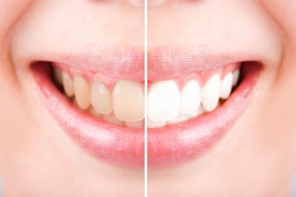 Wszystko o wybielaniu zębów [Fot. jayzynism - Fotolia.com]