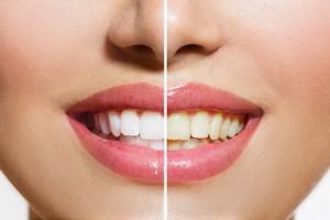 Wybielanie zębów: fakty i mity [© Subbotina Anna - Fotolia.com]