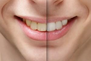 Wybielanie zębów: nie rób tego na własną rękę [© goodween123 - Fotolia.com]