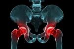 Wymiana stawu biodrowego lub kolanowego a ryzyko zawału [© Sebastian Kaulitzki - Fotolia.com]