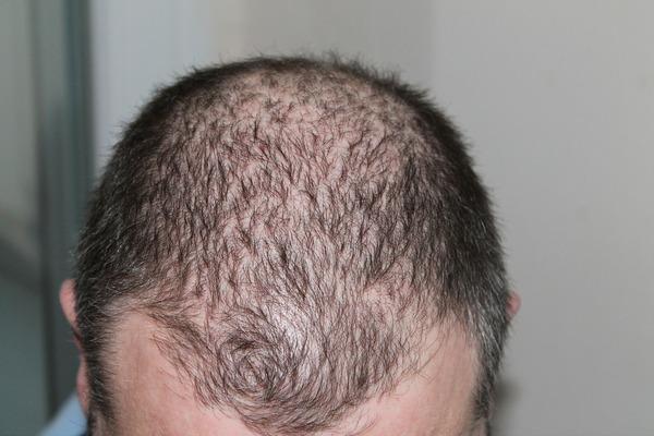Wypadają ci włosy? Być może to wina zanieczyszczenia powietrza [fot. kalhh z Pixabay]