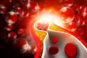 Wysoki cholesterol: zagrożenie może być dziedziczone [© hywards - Fotolia.com]