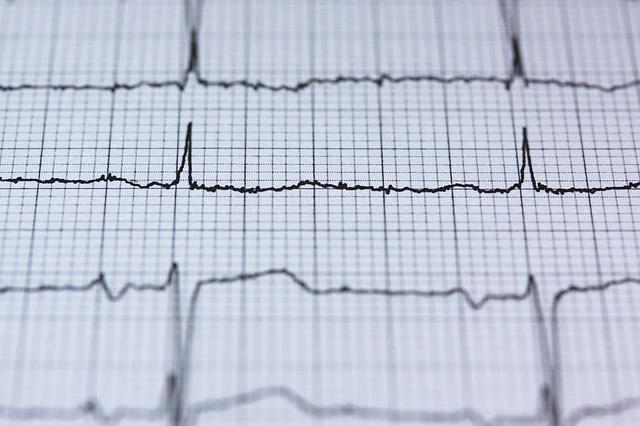 Wysokie tętno zwiększa ryzyko przedwczesnej śmierci [fot. stux from Pixabay]