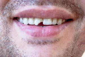 Z urlopu wróciłeś z urazem zęba? Oto co możesz zrobić [Fot. bearok - Fotolia.com]