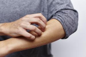 Zaburzenia psychiczne a choroby skóry [© miamariam - Fotolia.com]