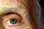 Zaćmę można (i trzeba) leczyć [© OneSmallSquare - Fotolia.com]