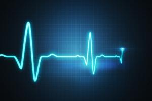 Zagrożenie dla serca - o każdej porze tygodnia ryzyko jest takie samo [Fot. vchalup - Fotolia.com]