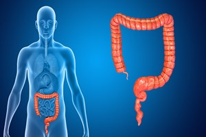 Zapalenie jelita grubego i rak jelita – przyczyn� niedostatek pewnych cukr�w? [© 7activestudio - Fotolia.com]
