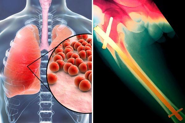Zapalenie płuc bardziej śmiertelne dla seniorów niż złamanie kości udowej [fot. collage Senior.pl / Canva]