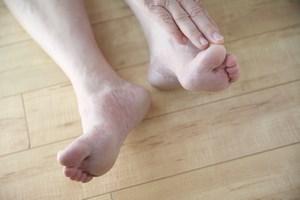 Zdrowie na stopach stoi [© nebari - Fotolia.com]
