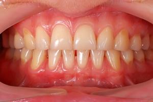 Zęby i dziąsła mówią. O chorobach [© vetkit - Fotolia.com]