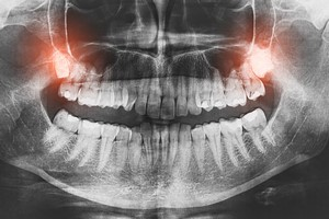 Zęby mądrości. Usuwać czy nie? [© REDPIXEL - Fotolia.com]
