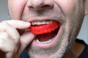 Zęby również potrzebują relaksu [Fot. michaelheim - Fotolia.com]