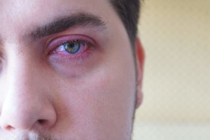 Zespół suchego oka - sprawdź jak go uniknąć [Fot. Konstantin Savusia - Fotolia.com]